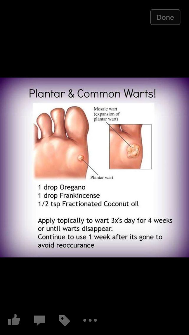 Learn how to Get rid of Warts Naturally t