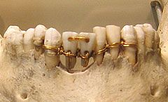 A Pictorial History Of Dentistry Dental Bridge Dentistry Ancient Egypt