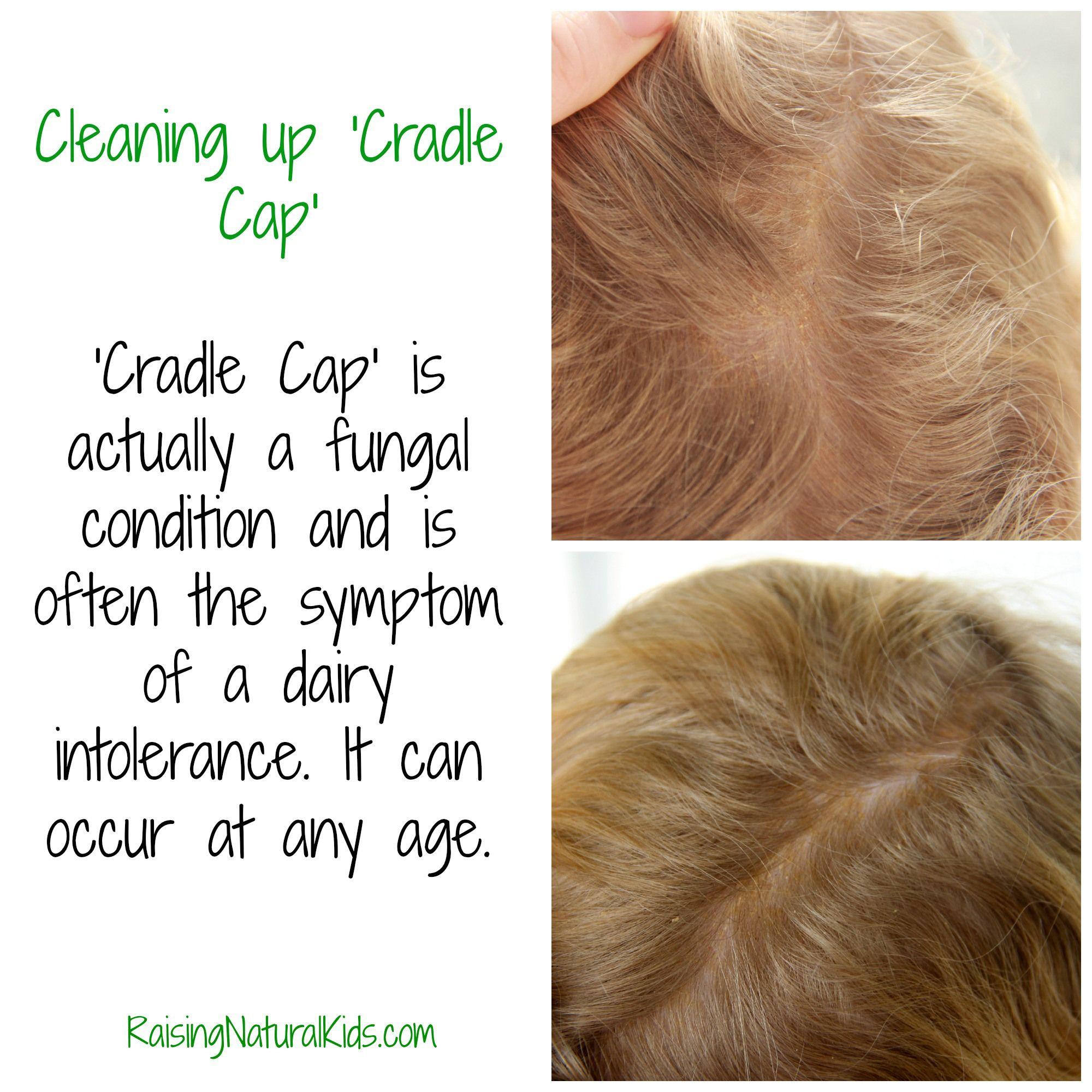 Cleaning Up Cradle Cap Cradle Cap Baby Cradle Cap Toddler Cradle Cap