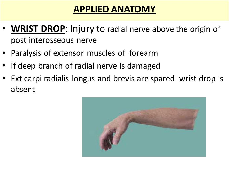 Image Result For Wrist Extension And Flexion Nerve Anatomy