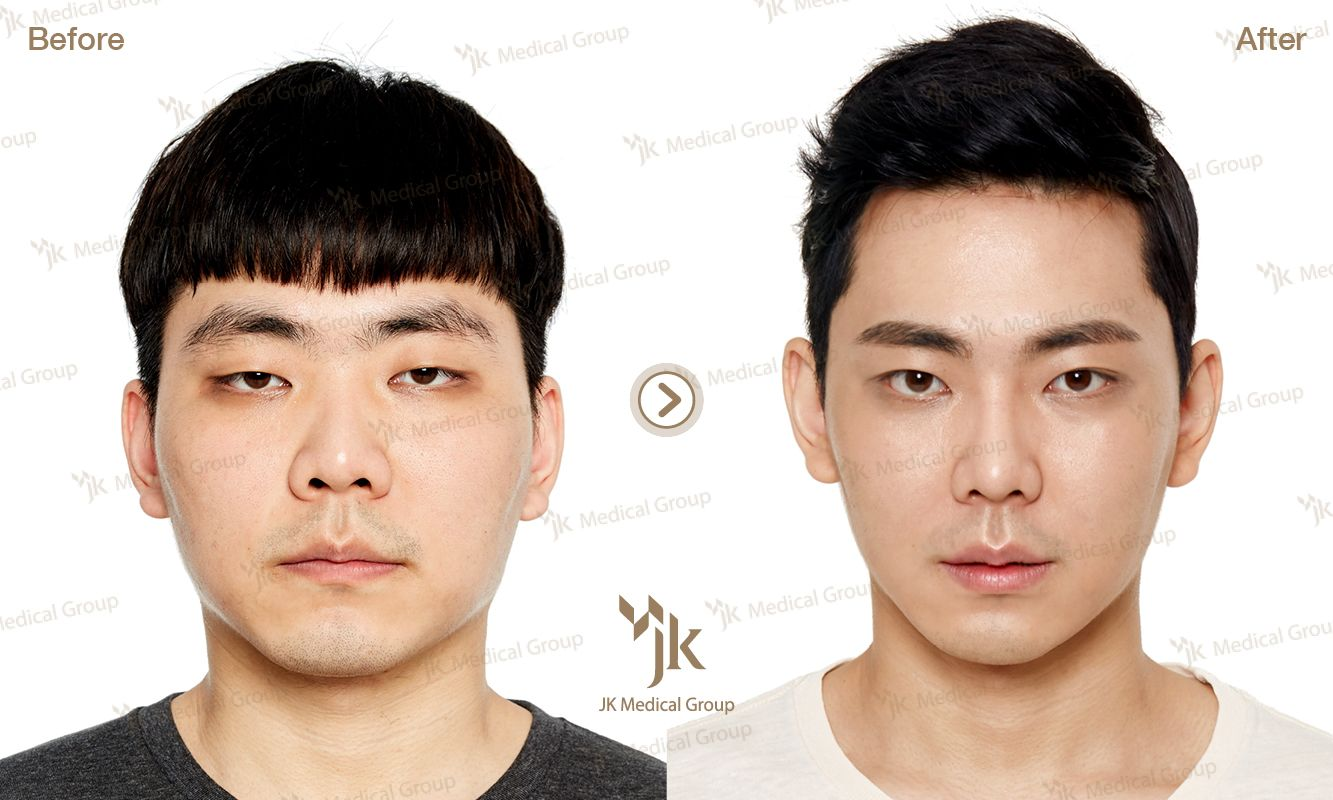 plastic surgery south korea All photos are copyrighted by jk plastic surgery center  nose surgery, epicanthoplasty, forehead surgery before after (3 month) breast  korea.