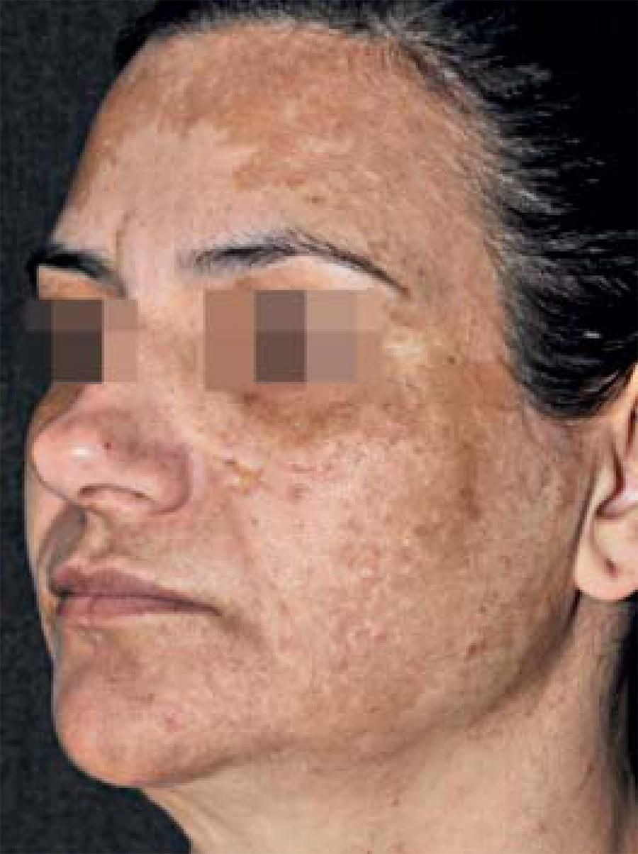 Pin by Michele Andrews on Hyperpigmentation Treatment ...