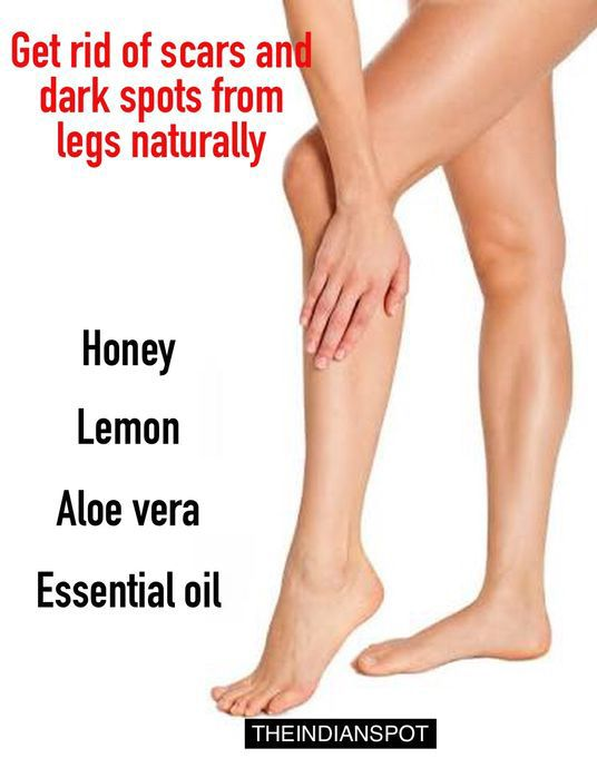 Can You Get Acne On Your Legs Obsessed Hair Adli Kullanicinin All Natural Health Beauty Panosundaki Pin Cilt Bakimi