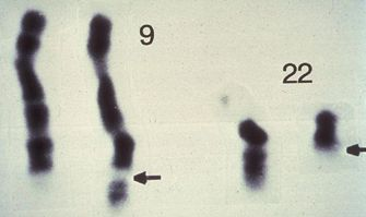 A micrograph shows four, dark, banded chromosomes on a white background. On the left are two copies of chromosome 9, and on the right are two copies of chromosomes 22. Two arrows indicate the reciprocal translocation of the long arms of chromosomes 9 and 22, creating a longer version of chromosome 9 and a shorter version of chromosome 22, which is called the Philadelphia chromosome.