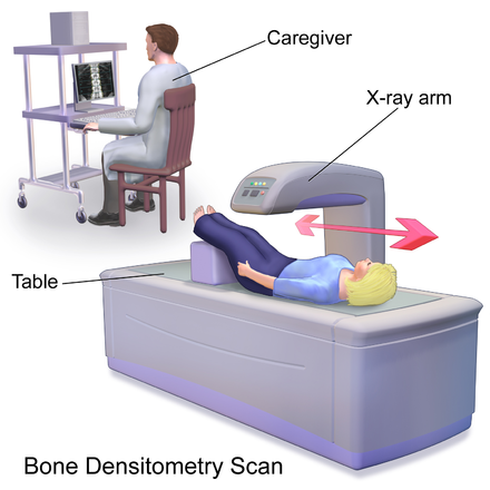 25++ Dexa scan for osteoporosis screening ideas in 2021