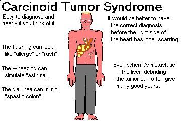 Endocrine cancer syndrome - primariacetateni.ro