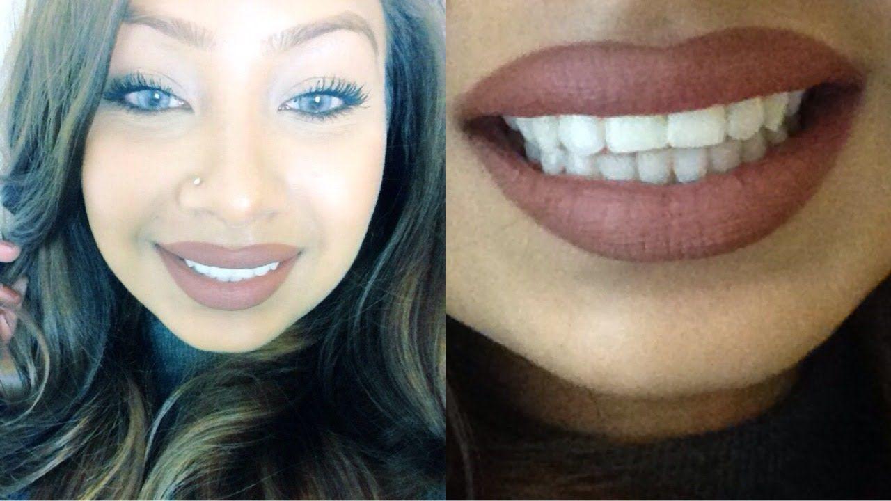 Teeth bonding fixing gap teeth without braces teeth