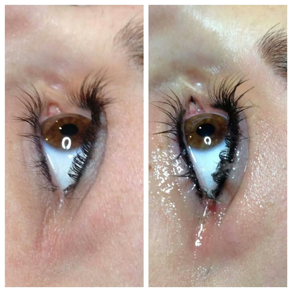 Before and After Permanent Eyeliner Procedure 1st Photo