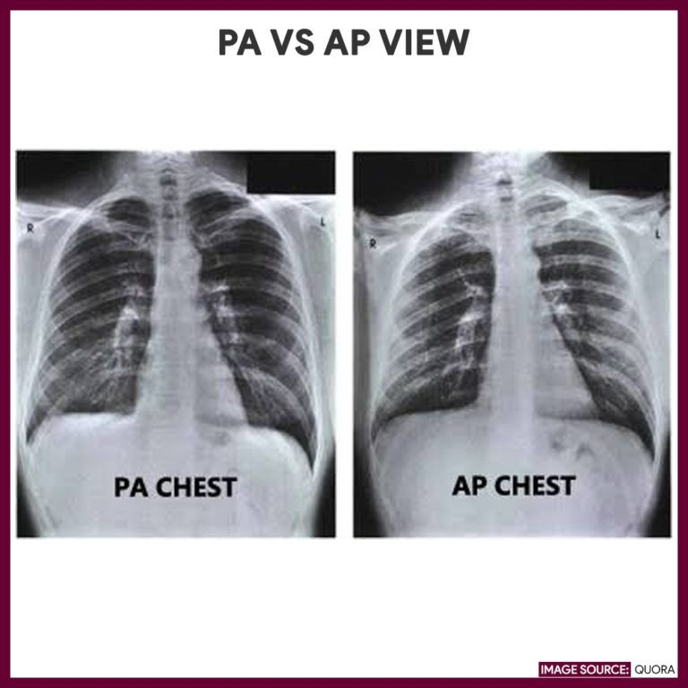 Chest X Ray Chest Radiography Nurse Study Guide Nursing Study Guide Nursing Study Radiography
