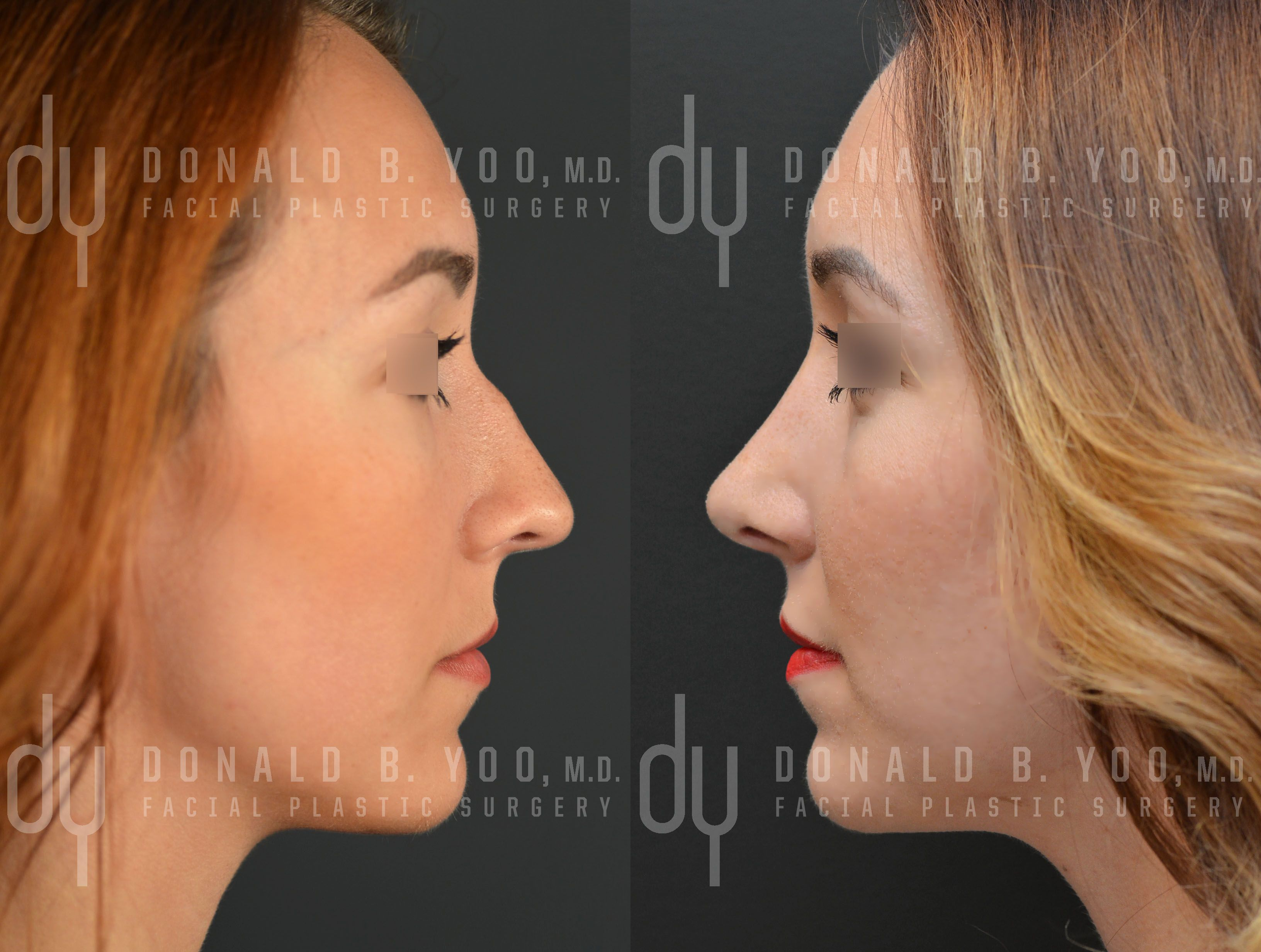 Before and After Primary Open Rhinoplasty and Septoplasty
