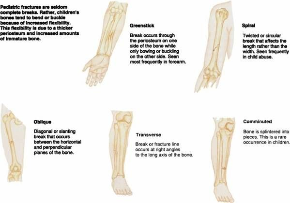 Fractures Fractures are referred to as simple or compound. A ...