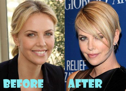 Charlize Theron Plastic Surgery Before And After Pictures Plastic