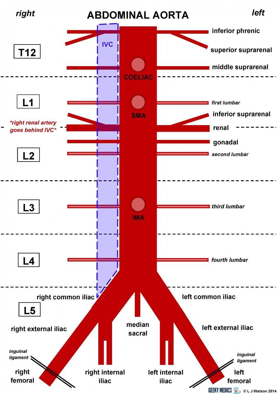 aorta geeky medics | Anatomy | Pinterest