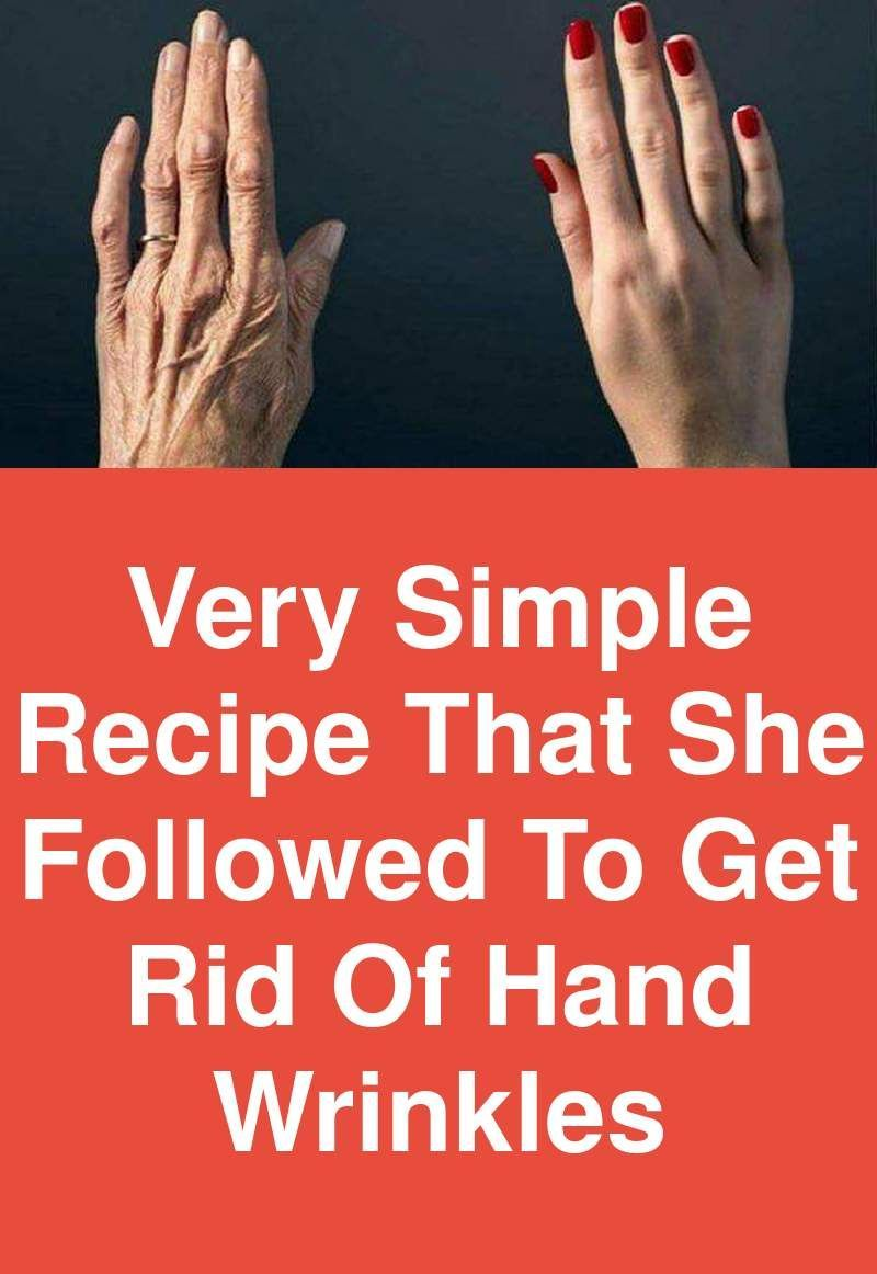 Very simple recipe that she followed to get rid of hand wrinkles is part of Wrinkles hands - Generally we take good care of face but not other body parts and among them hands can easily reveal your age  The reason why they get wrinkled so much is because we don't pay much attention to them  There are some things we regularly do that leave permanent marks on our hands like cleaning, doing …