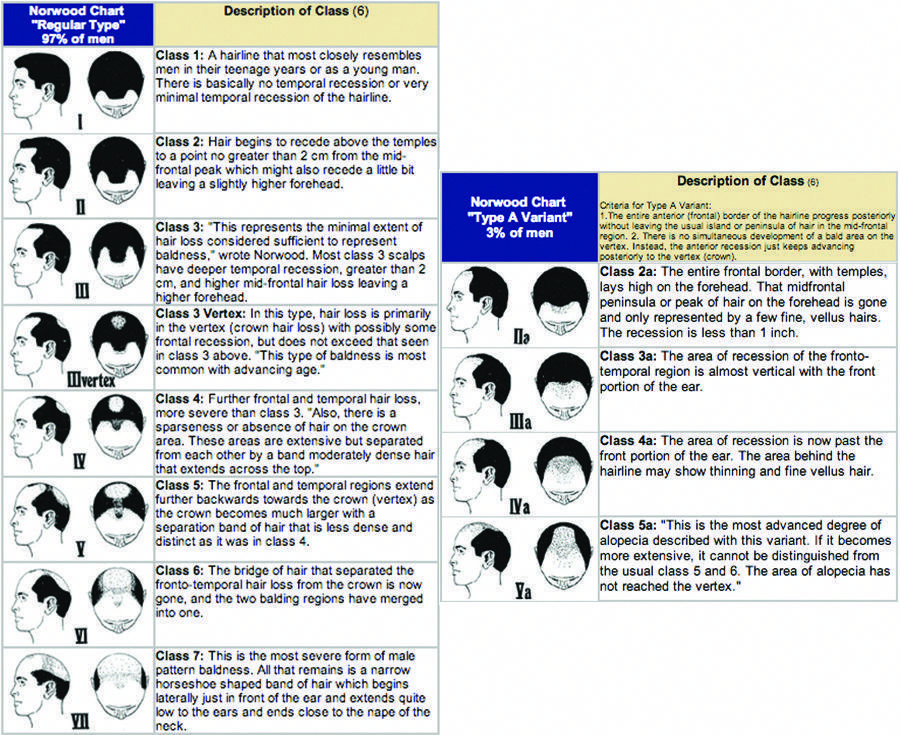 Bald Head Alopecia With Images Hair Loss Awareness Male Pattern Hair Loss Help Hair Loss