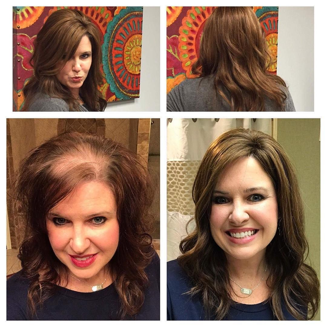 hair toppers for women with thinning hair or hair loss! how