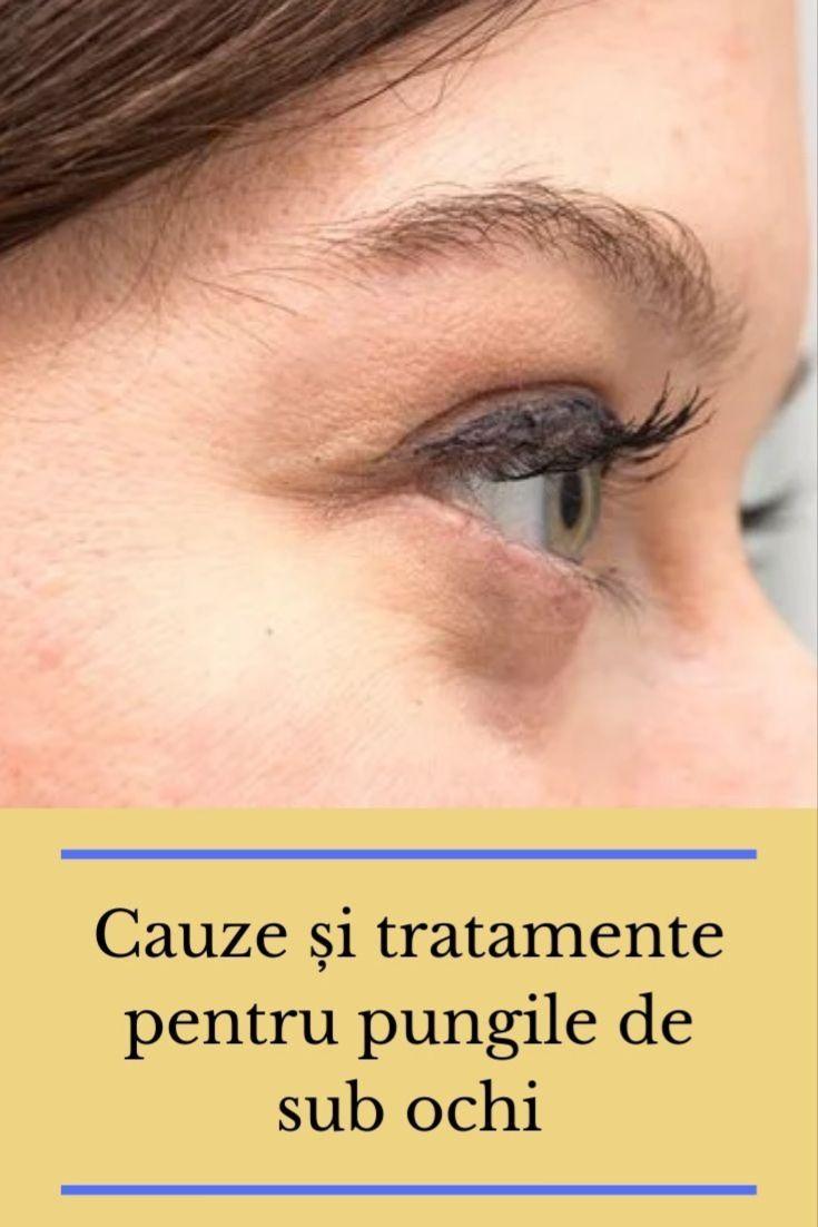 Viena sub ochi: cauze, factori de risc, tratament - Profilaxie - April