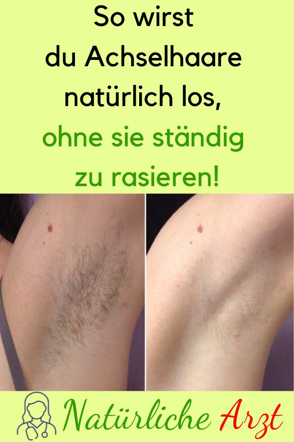 So wirst du Achselhaare natürlich los, ohne sie ständig zu rasieren! #Tipps #NatürlicheTipps #Achselhaare #rasieren #Hausmittel #naturalism