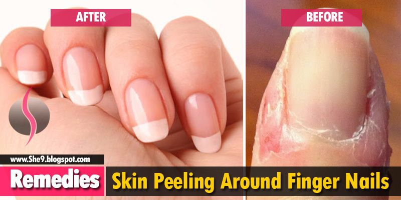 Best Way To Get Rid Of Peeling Around Finger Nails