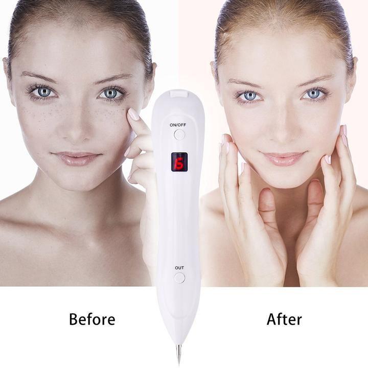 Freckle removal pen tattooremovallaser laser freckle
