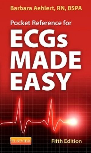 29 free test bank for ecgs made easy 5th edition by aehlert multiple 29 free test bank for ecgs made easy 5th edition by aehlert multiple choice questions is fandeluxe Gallery