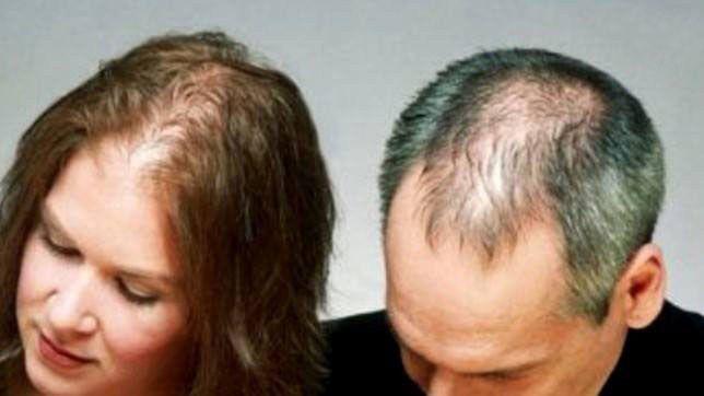 Calvicie Alopecia Em Homem E Mulher Receita Natural Saude