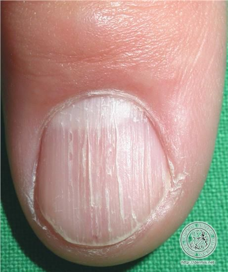 localisation: fingernail diagnosis: Lichen Planus | Nail Disorders ...