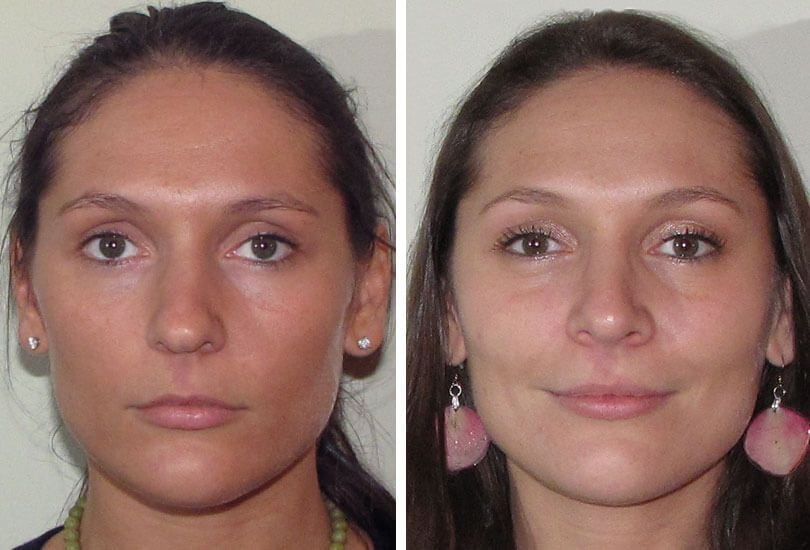Image result for amazing rhinoplasty revision