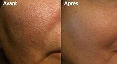 Les 10 meilleures astuces pour resserrer les pores