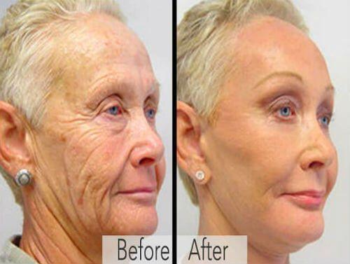 Anti-Wrinkle Cream Reports Live - Beauty Health Times