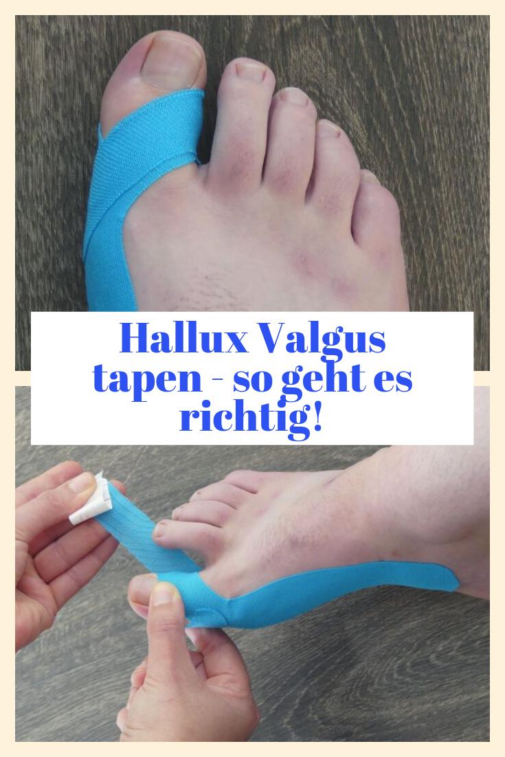 Hallux Valgus tapen - so geht es richtig! #hairremoval