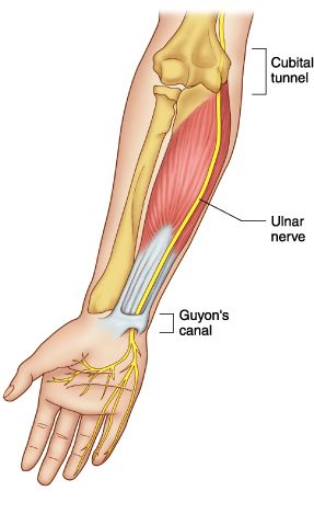 Neuropathy Of Ulnar Nerve Entrapment Medical Disability Guidelines ...