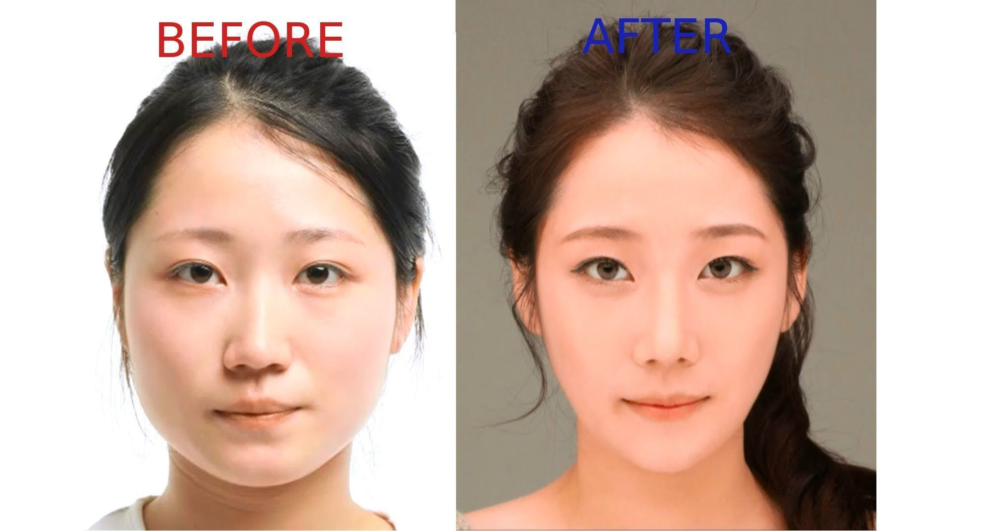 Korean facial plastic surgery