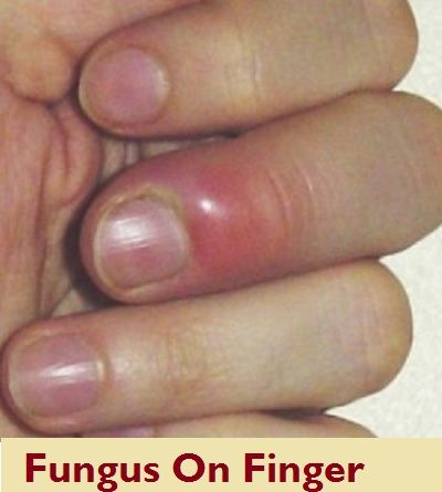 What Causes Nail Bed Infection Get More Insights On Of Purple White Blue Treatment And Prevention