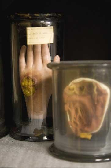 diseased anatomy could be cool props in-store to create science-lab - mad scientist halloween decorations
