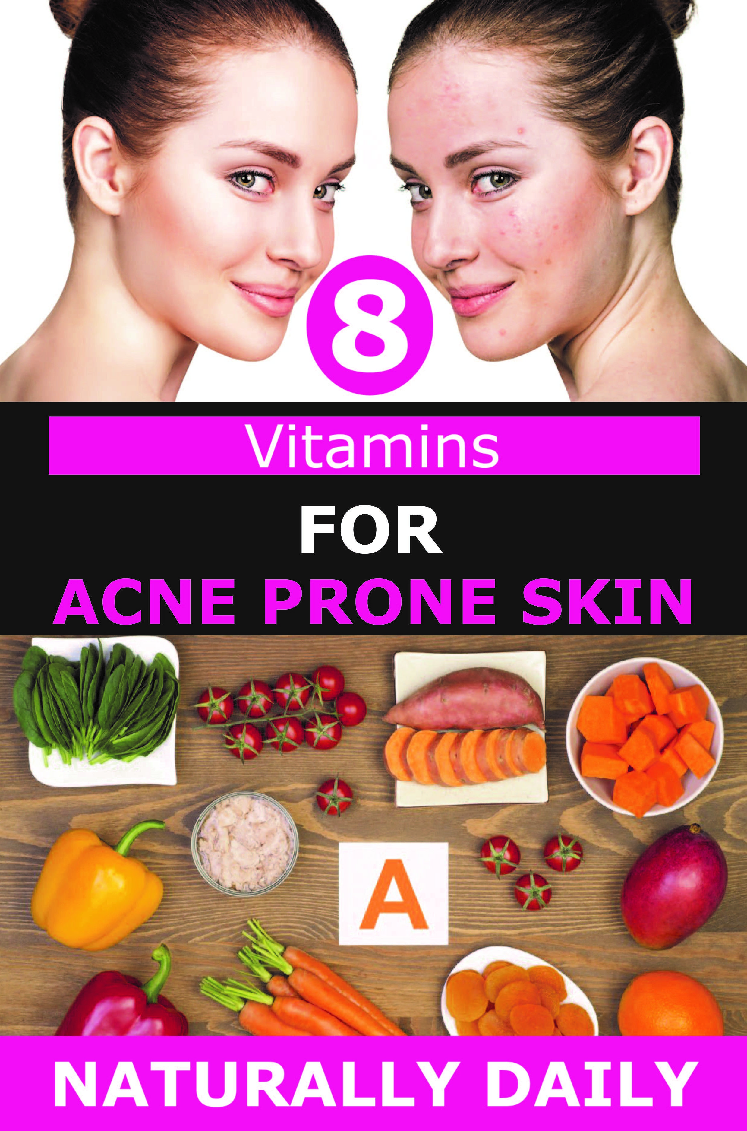 8 vitamins for acne prone skin that you should know acne
