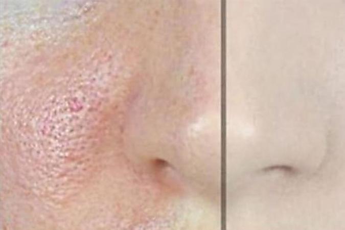 Maske Gegen Poren