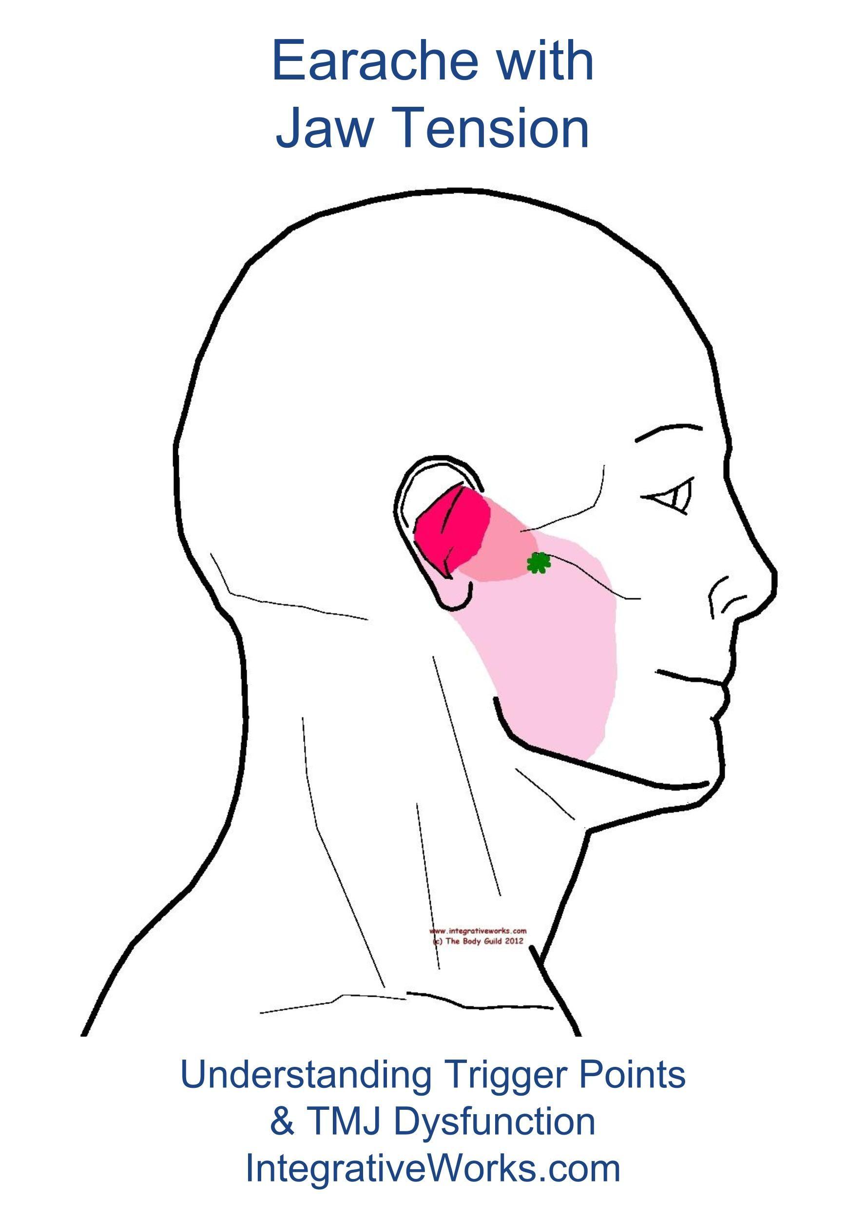 cc643f0ec650ba1819a202f1ee2c375a - How To Get Rid Of Tooth Pain From Sinus Pressure