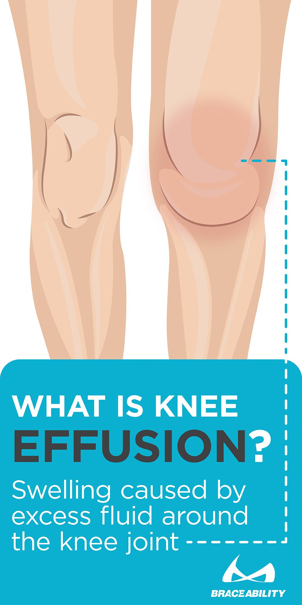 What is Knee Effusion?