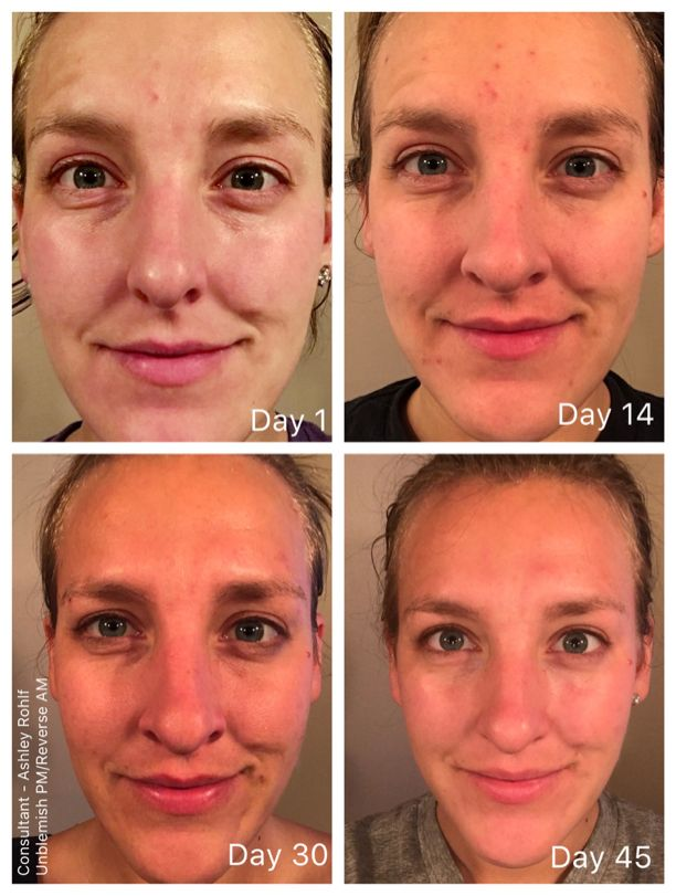 Get Rid of Acne and post acne red spots with Rodan and