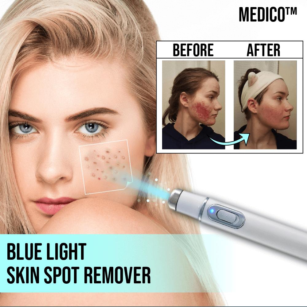 MEDICO™ Blue Light Skin Spot Remover Dark spot remover