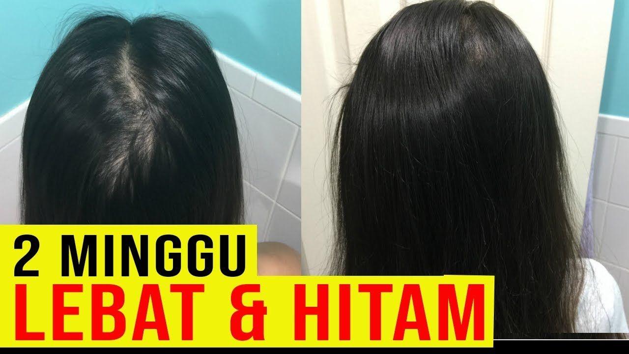 Miliki Rambut Kuat Rontok Berkurang Setiap Keramas Cek Terbukti Ilmiah Perawatan Rambut Terbaik Solusi Masalah Ramb Perawatan Rambut Rambut Rontok Keramas