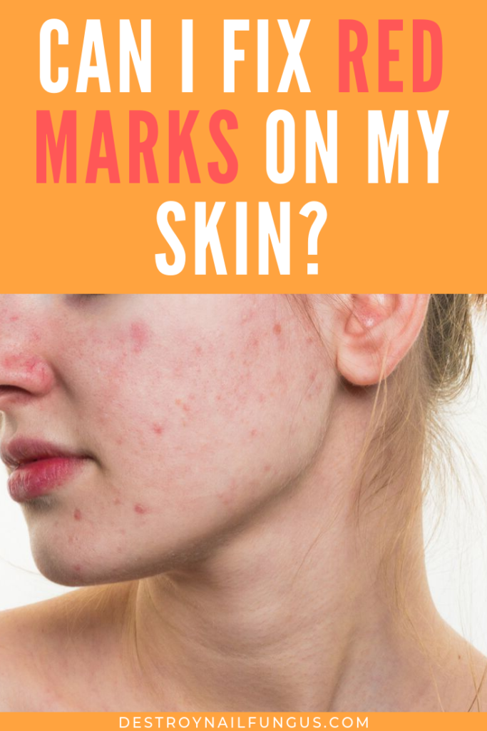 Simple Remedies to Treat Your Blotchy Skin Blotchy skin
