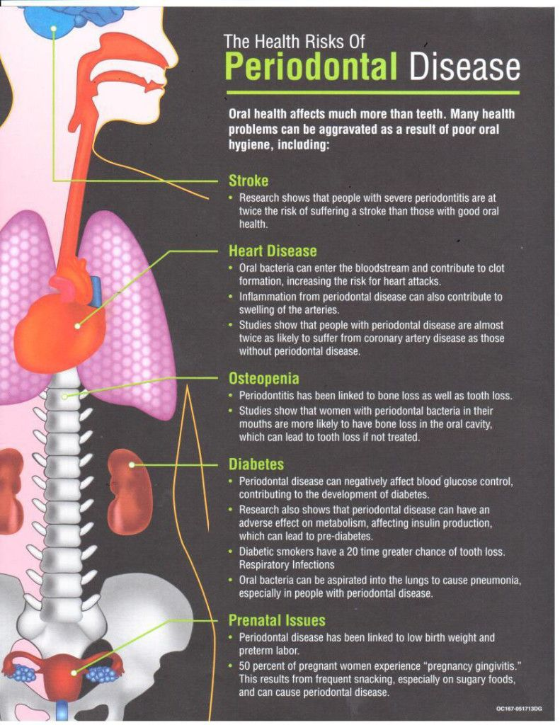 Periodontal disease is most often preceded by gingivitis which is a ...