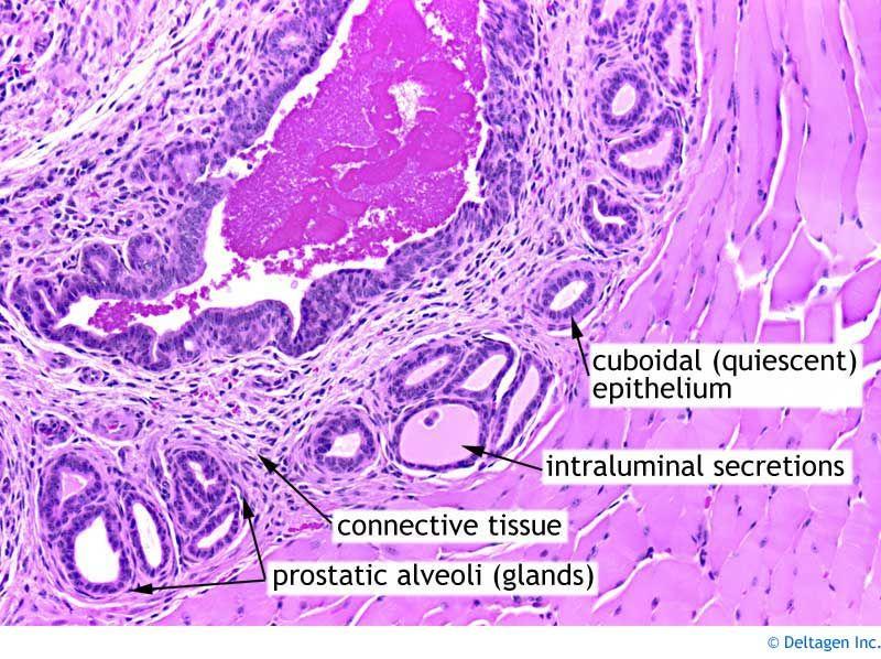 normal prostate histology | Патологија на машки генитален ...