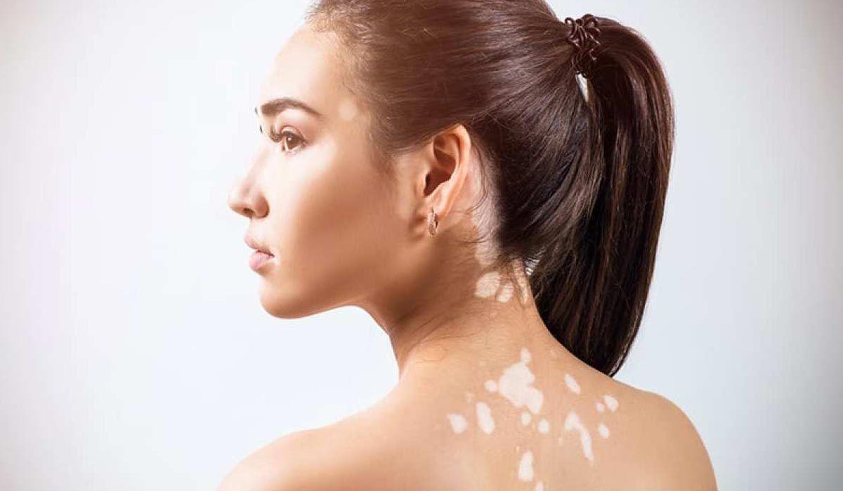 كيف نعالج البهاق In 2020 Vitiligo Treatment Vitiligo Vitiligo Cure
