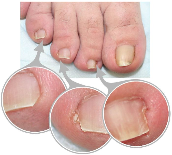 How to Get Rid of a Painful Ingrown Toenail as Fast as Possible ...