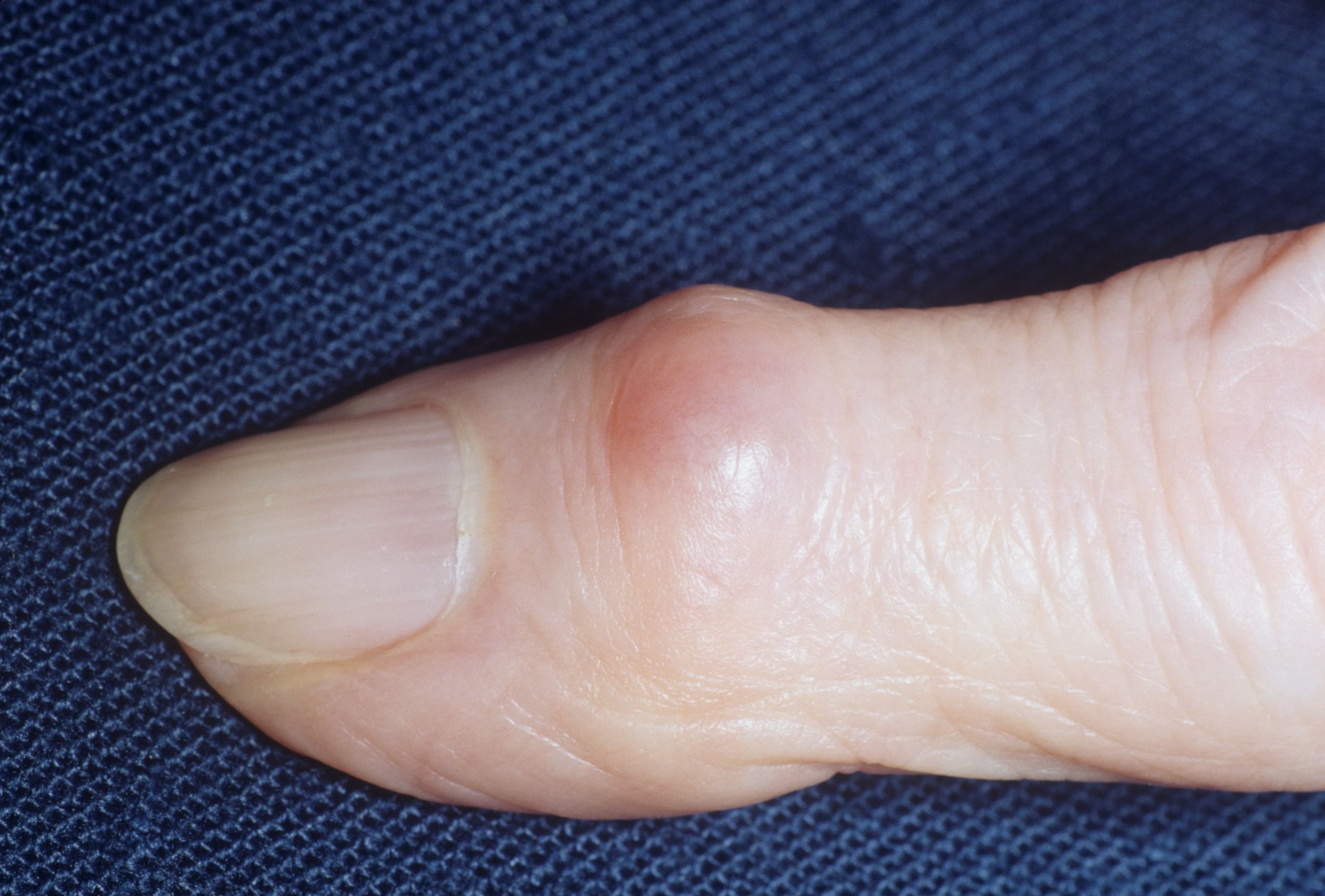 Natural Cures For Gout In Hand