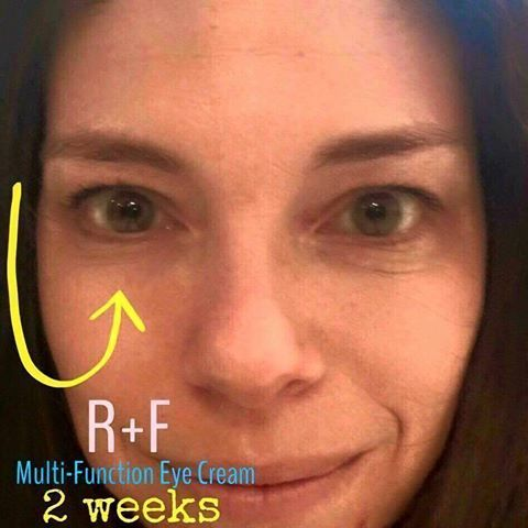 Rodan And Fields Eye Cream Review Multifunction Eye Cream Anti Aging Eye Cream Eye Cream Review