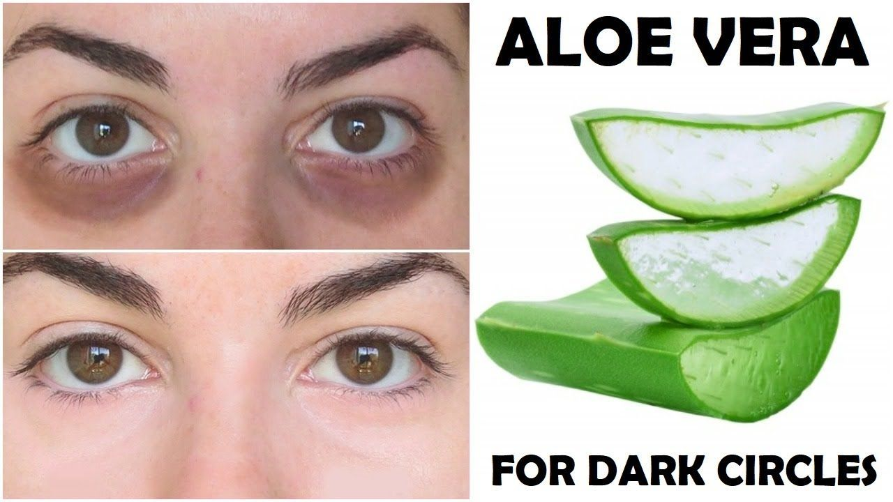 How To Remove Dark Circles In 2 Days Permanently (With ...